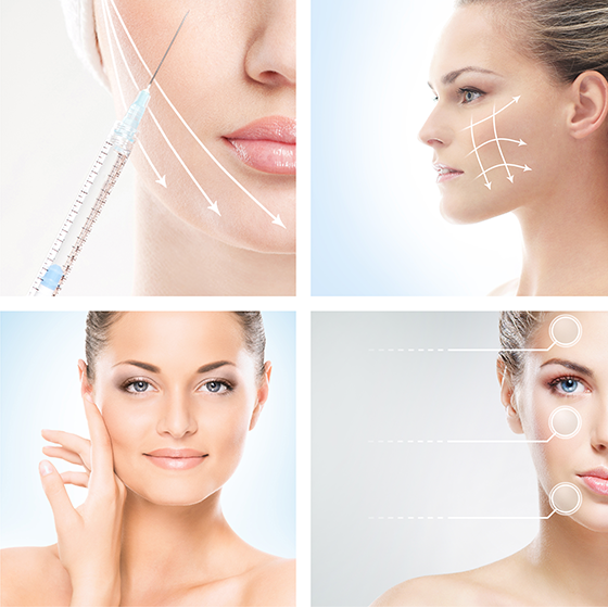 Wrinkle Injections London